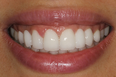 Smile Makeover Before and After Gallery | www LosFelizDentalCenter com